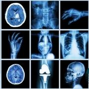 رادیولوژی چیست و چه کاربردی دارد؟
