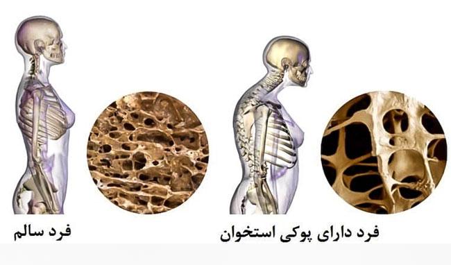 مقایسه فرد سالم و دارای پوکی استخوان