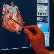 سی تی اسکن قلب چیست و چگونه انجام می شود؟