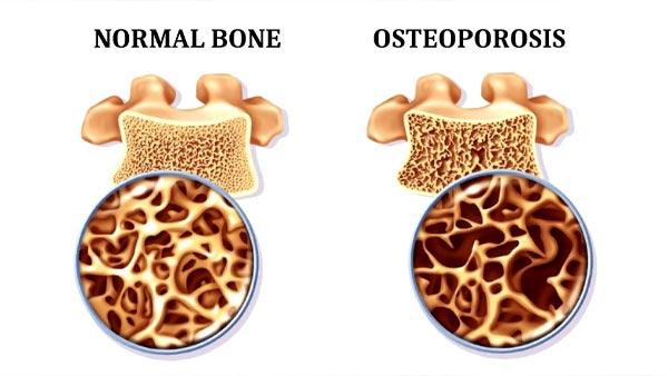 تفاوت استخوان سالم و پوکی استخوان