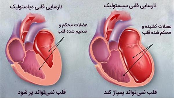علت بیماری نارسایی قلبی