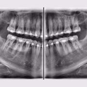 رادیولوژی فک و صورت چیست و چه کاربردی دارد؟