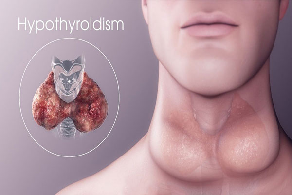 بیماری کم کاری تیروئید یا هیپوتیروئیدیسم