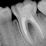 رادیوگرافی پری اپیکال یا تک دندان چیست؟