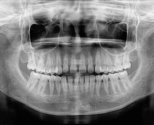 آمادگی برای رادیولوژی دندان