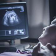 سونوگرافی غربالگری جنین چیست؟