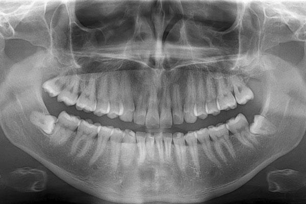 عکس OPG دندان