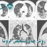 بهترین روش تشخیص ویروس کرونا
