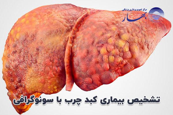 تشخیص بیماری کبد چرب با سونوگرافی