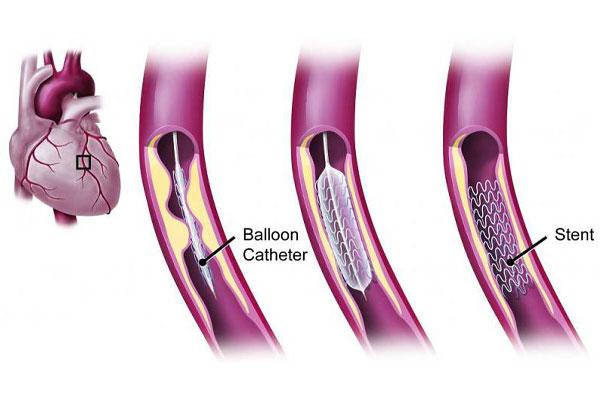 آنژیوگرافی قلب چیست و چرا انجام می شود؟