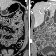 سی تی انتروگرافی (CT Enterography) چیست؟