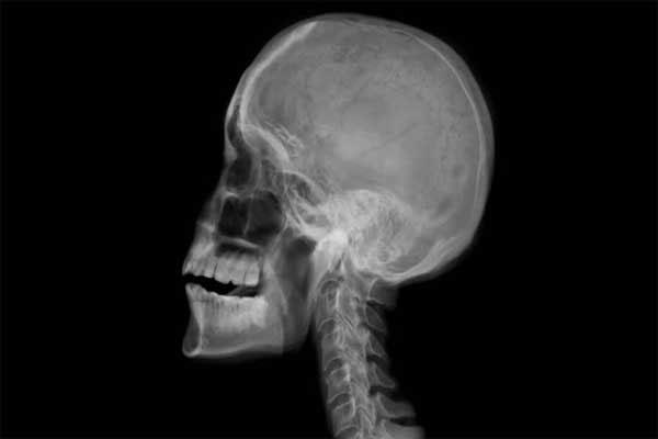 رادیوگرافی جمجمه چیست؟