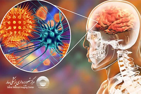 بیماری آنسفالیت مغزی چیست