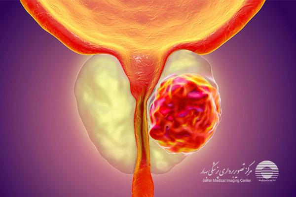 تشخیص سرطان پروستات با سونوگرافی