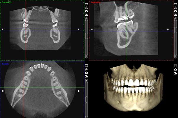 سی تی اسکن دندان چیست و چرا انجام می شود؟