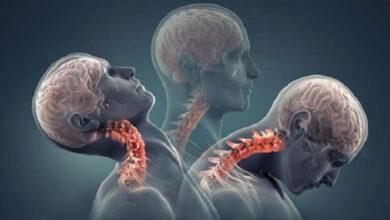 ام آر آی سرویکال یا ستون فقرات گردنی چه کاربردی دارد؟