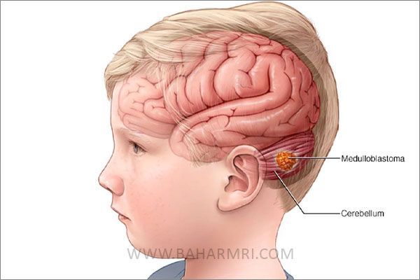 تومور مغزی کودکان