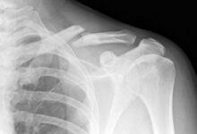 علائم ،تشخیص و درمان شکستگی استخوان