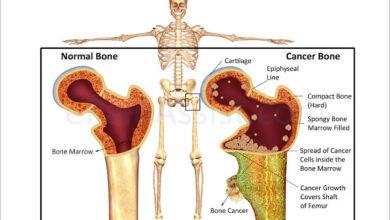 بیماری سرطان استخوان