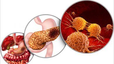 علت و علائم سرطان لوزالمعده چیست؟