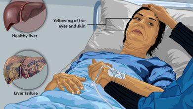بیماری نارسایی حاد کبد