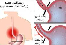 بیماری رفلاکس معده چیست و چه علائمی دارد؟