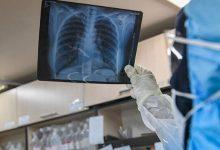 بیماری التهاب ریه یا ذات الریه چیست؟